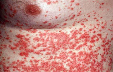 Huiduitslag allergische reactie