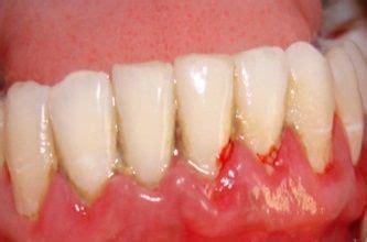 gum abscess periodontal abscess pyorrhea