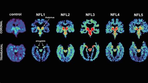 total pro sports cte founds  living person   time