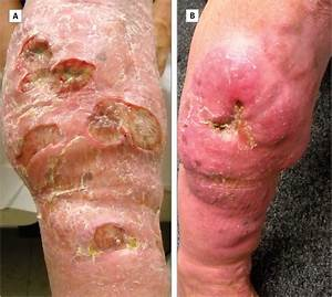 Oral Antimycobacterial Therapy In Chronic Cutaneous