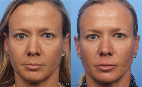 eye rejuvenation rejuvent