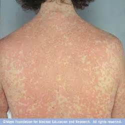drug rash usually starts within two weeks of taking a new medication ...  Hives Drug allergies