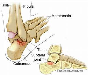 subtalar joint - Advanced Physical Therapy Specialists