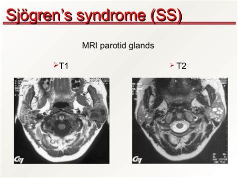 Sjogren's Syndrome Parotid Gland