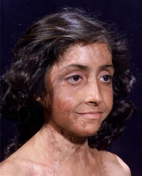 Burn Victim Gets Amazing Facial Reconstruction (4 pics ...