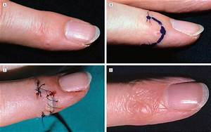 Skin Excision And Osteophyte Removal Is Not Required In