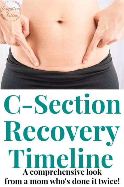 C Section Scar Recovery by C Section Recovery Timeline Forgotten Lattes