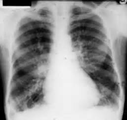 Bronchiectasis. Causes, symptoms, treatment Bronchiectasis  Cystic Fibrosis Bronchiectasis
