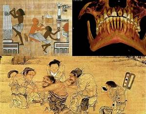 Ancient History Of Dentistry | MessageToEagle.com