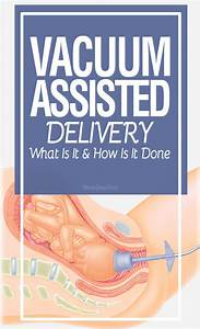 Vacuum Assisted Delivery What Is It And How Is It Done