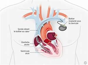 France implantation du plus petit pacemaker au monde for Mise en place chariot femme de chambre
