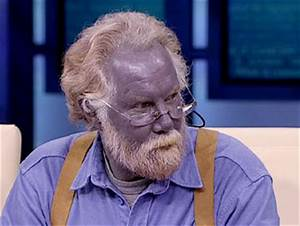 Dr. Oz Investigates The Man Who Turned Blue