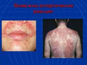 Лечение свеклой аденомы простаты