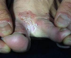 Грибок между ног в паху чем лечить