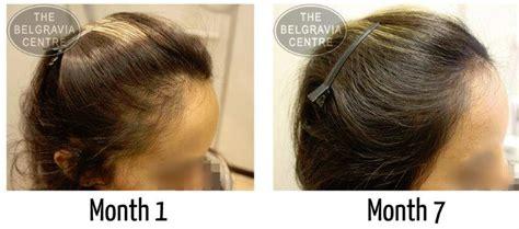 Postpartum Hair Loss Hairstyles