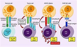 Natural Killer Cell Therapy For Acute Myeloid Leukemia  Aml  Acute