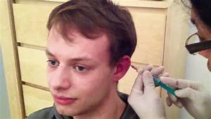 Draining Julian's first cauliflower ear - YouTube