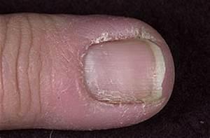 Chronic paronychia= التهاب مزمن ما حول الظفر