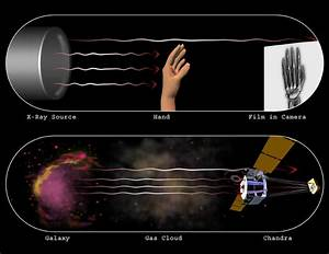 Chandra :: Resources :: X-Ray Astronomy vs. Medical X-Rays