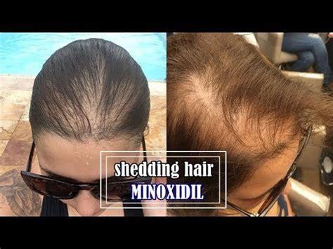 rogaine shedding how shedding hair minoxidil