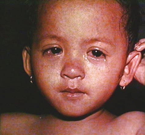 Measles Images Measles Symptoms Pictures Causes Treatment