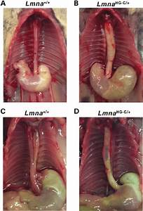Megaesophagus In Lmna Hg   Mice   A And B  A Dilated