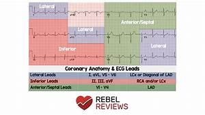 Coronary Anatomy  U0026 Ecg Leads - Rebel Em
