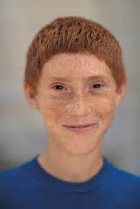 Ugly Ginger People