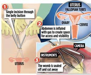 I've had a hysterectomy... through my belly button: First ...