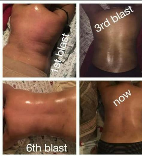 contour light body sculpting before and after lipo light body sculpting results decoratingspecial com