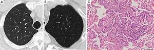 The Revised Lung Adenocarcinoma Classification U2014an Imaging