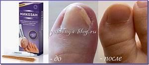 Как вылечить грибок ногтей по неумывакину