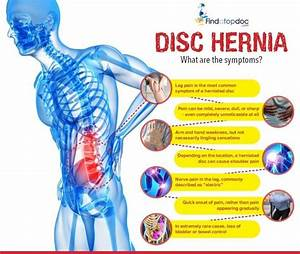 Everything You Need To Know About Disc Herniation