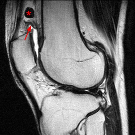 Synovial Plicae of the Knee - Radsource