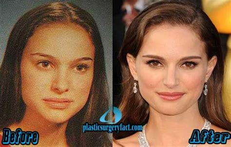 Top Celebrities With Nose Jobs Before After
