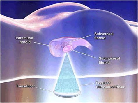 Uterine Fibroid Embolization ( UFE ) uterine fibroid tumor ...