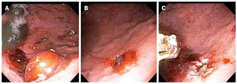 Within organic heme molecules of red blood cells is the element iron, which oxidizes following exposure to gastric acid. Gastrointestinal bleeding from Dieulafoy's lesion: Clinical presentation, endoscopic findings ...