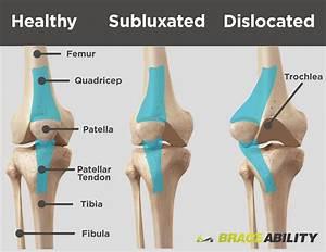 Patellar Subluxation  Partially Dislocated Kneecap