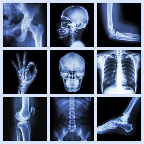 cvcc hosts radiography program open house