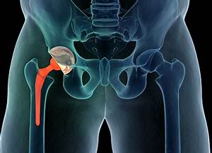 Should I have a hip replacement? - Mayo Clinic Health System