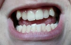 Dents Qui Se Déchaussent Photos : mes dents avant apr s orthondontie photos beaut des dents forum beaut ~ Medecine-chirurgie-esthetiques.com Avis de Voitures