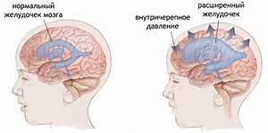 Тахикардия и повышенное давление симптомы и лечение