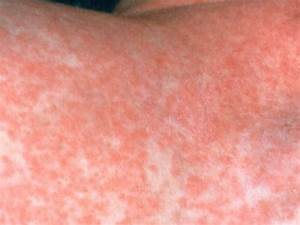 Rubella - German Measles | SjuktBarn.com