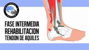 Rotura Del Tendon De Aquiles  Ejercicios Y Rehabilitacion
