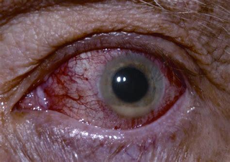 hypopyon american academy  ophthalmology