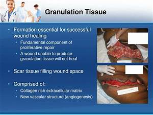 PPT - Negative Pressure Wound Therapy (NPWT): Principles ...