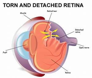 Retinal Detachment Lexington