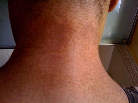 dark spots   neck  spreading