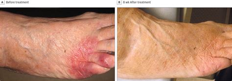 palliative therapy  recalcitrant cutaneous  cell