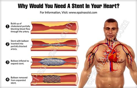 Why Would You Need A Stent In Your Heart